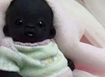 세상에서 가장 '까만 아기' 탄생