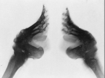 """중국의 악습 """"전족""""을 한 할머니들의 발(사진6장)"""