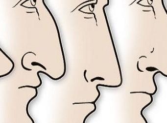 코의 모양으로 본 당신의 성격은?