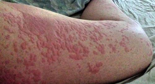 Allergische Reaktion Auf Nüsse