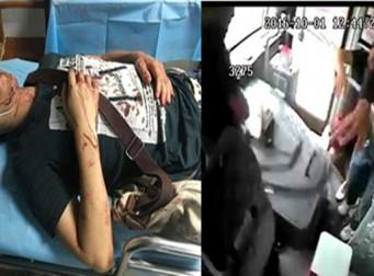 뒷문으로 승차하려던 승객을 발견하지 못한 버스기사가 문을 닫자, 이후 그에게 벌어진 끔찍한 일