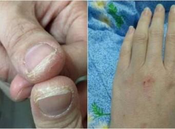 세상에서 가장 아름다운 손의 주인공 (사진 4장)