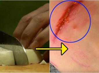 우리가 잘못 알고 있는 '손가락 베였을 때'하는 3가지 응급처치 방법