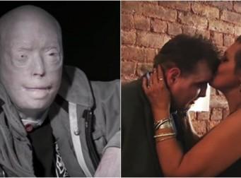 '죽은 아들의 얼굴'을 이식 받은 남자를 만난 어머니 (동영상)