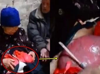 장이 배밖에 나온 채 비닐봉지로 덮고 살아온 할머니 (동영상)