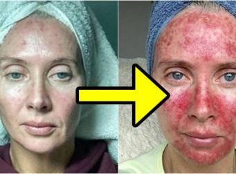 '이것' 하다가 10일 만에 피부 뒤집어진 여자 (사진7장)