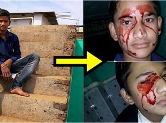 하루에 10번씩 눈, 코, 입에서 피가 흘러 나오는 인도 소년 (사진5장)