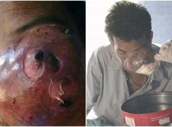 얼굴에 물고기 모양의 종양을 가지고 있는 남성 (사진 3장)