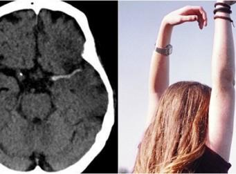'3시간 이내에 치료받지 못하면' 위험한 뇌졸중을 확인할 수 있는 4가지 방법