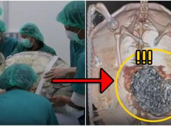 뱃속에 꽉 차 있던 '이것' 때문에 등껍질이 갈라진 거북이 (동영상)
