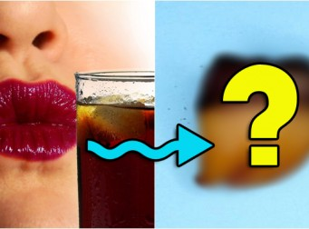 콜라와 에너지 드링크가 우리 치아에 미치는 충격적인 영향 (사진 3장)