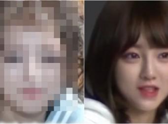 """""""성형수술 얼굴 자리잡는 데 2년"""" 유튜버 외질혜가 공개한 얼굴 변천사 (동영상)"""