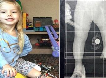 하루에 세 번씩 딸의 다리를 부러뜨려야 했던 부모의 이야기 (사진3장)