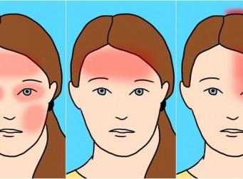 흔히 일어나는 7가지 두통과 그의 원인들 (사진 7장)