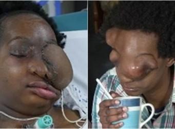 암과 싸우고 있는 '얼굴 없는' 여성의 이야기