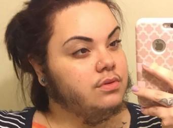 """수염가진 여자친구, 그마저 """"사랑한다""""는 남자친구 (사진3장)"""