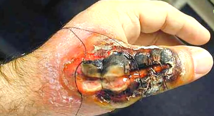 Treatment for a Brown Recluse Spider Bite