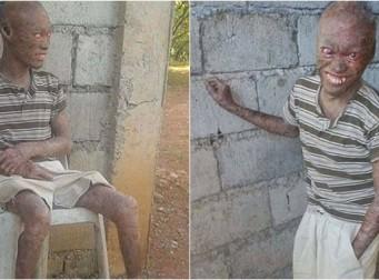 지역 주민들에게 저주받은 '유령'이라고 낙인찍인 남자 (사진4장)