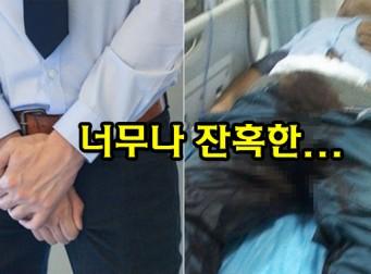남성의 성기가 가장 '엽기적'으로 손상된 사건 TOP 5