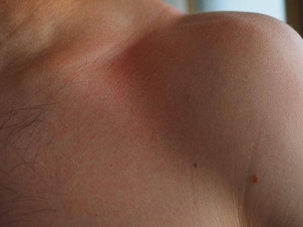 sunburn-2117353_960_720