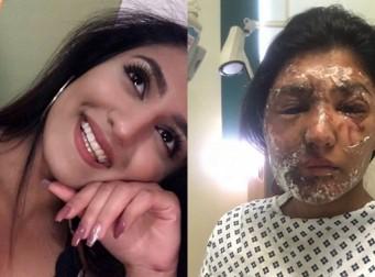 생일날 괴한에게 염산 테러를 당한 여성