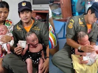 매일 피부가 벗겨지는 희귀병을 안고 태어난 아기 (사진3장)